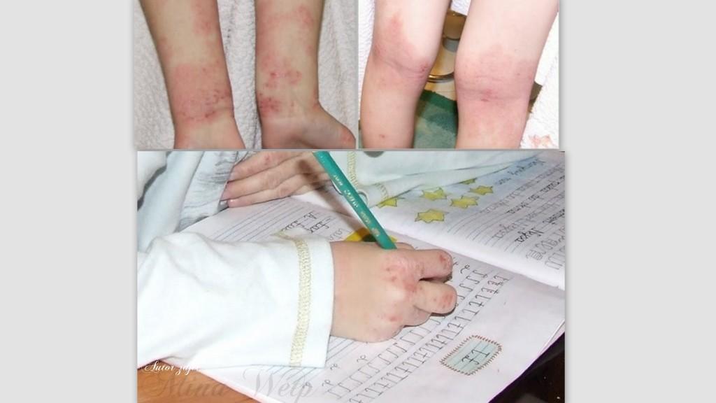 alergia skórna wysokie stadiu